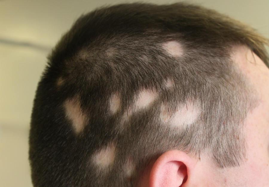 Ampule za rast kose-apoteka lora