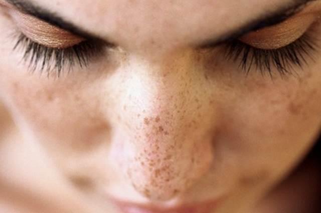 Cilt Pigmentasyonu Doğal Tedavi Yolları